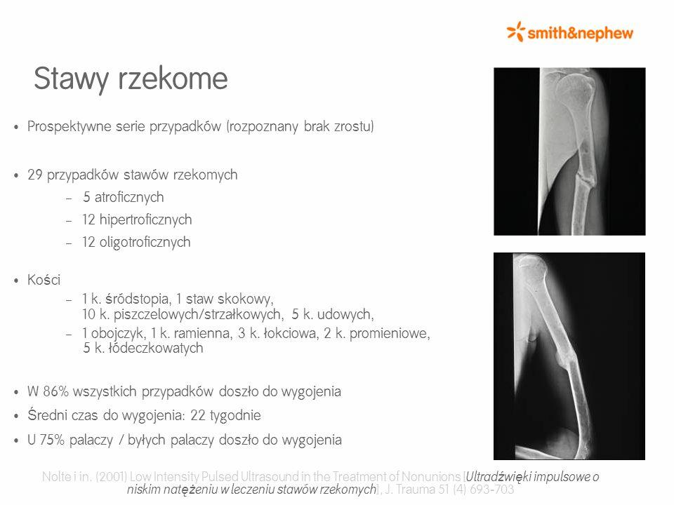 Stawy rzekome Prospektywne serie przypadków (rozpoznany brak zrostu) 29 przypadków stawów rzekomych – 5 atroficznych – 12 hipertroficznych – 12 oligotroficznych Ko ś ci – 1 k.