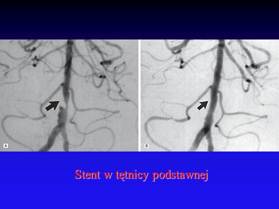Stent w tętnicy podstawnej Stent w tętnicy podstawnej