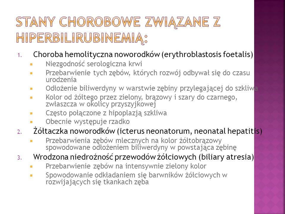 1. Choroba hemolityczna noworodków (erythroblastosis foetalis) Niezgodność serologiczna krwi Przebarwienie tych zębów, których rozwój odbywał się do c