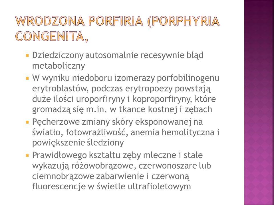 Dziedziczony autosomalnie recesywnie błąd metaboliczny W wyniku niedoboru izomerazy porfobilinogenu erytroblastów, podczas erytropoezy powstają duże i