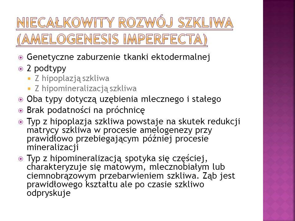 Genetyczne zaburzenie tkanki ektodermalnej 2 podtypy Z hipoplazją szkliwa Z hipomineralizacją szkliwa Oba typy dotyczą uzębienia mlecznego i stałego B