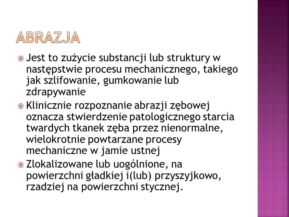 Jest to zużycie substancji lub struktury w następstwie procesu mechanicznego, takiego jak szlifowanie, gumkowanie lub zdrapywanie Klinicznie rozpoznan