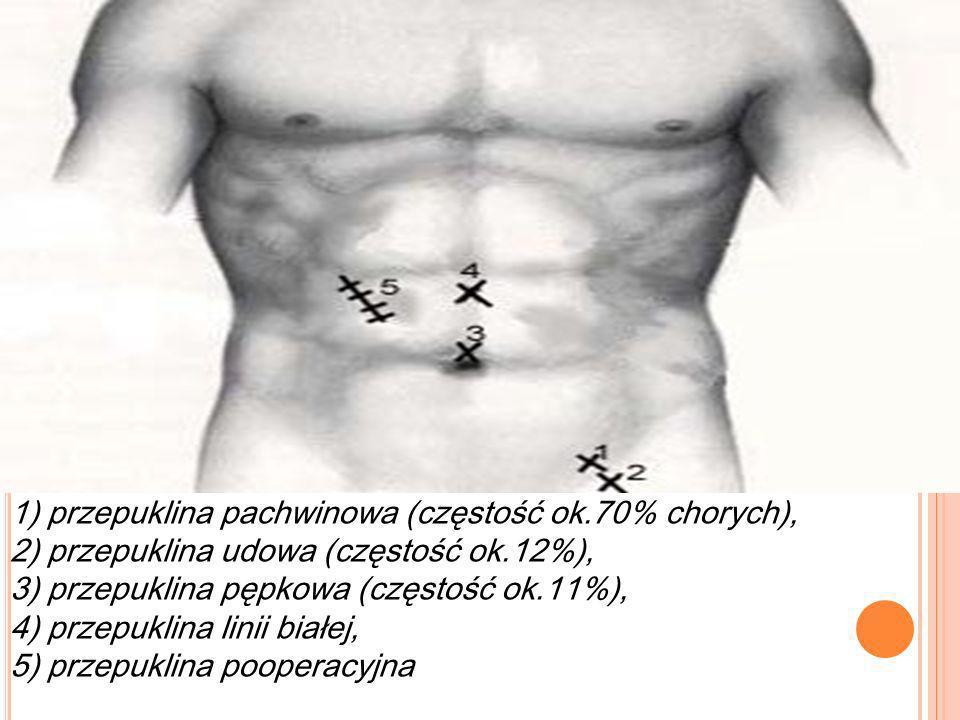 1) przepuklina pachwinowa (częstość ok.70% chorych), 2) przepuklina udowa (częstość ok.12%), 3) przepuklina pępkowa (częstość ok.11%), 4) przepuklina