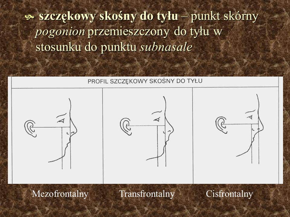 szczękowy skośny do tyłu – punkt skórny pogonion przemieszczony do tyłu w stosunku do punktu subnasale szczękowy skośny do tyłu – punkt skórny pogonio