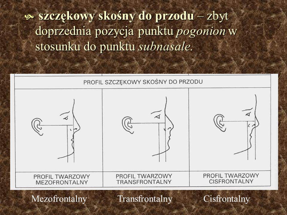 szczękowy skośny do przodu – zbyt doprzednia pozycja punktu pogonion w stosunku do punktu subnasale. szczękowy skośny do przodu – zbyt doprzednia pozy