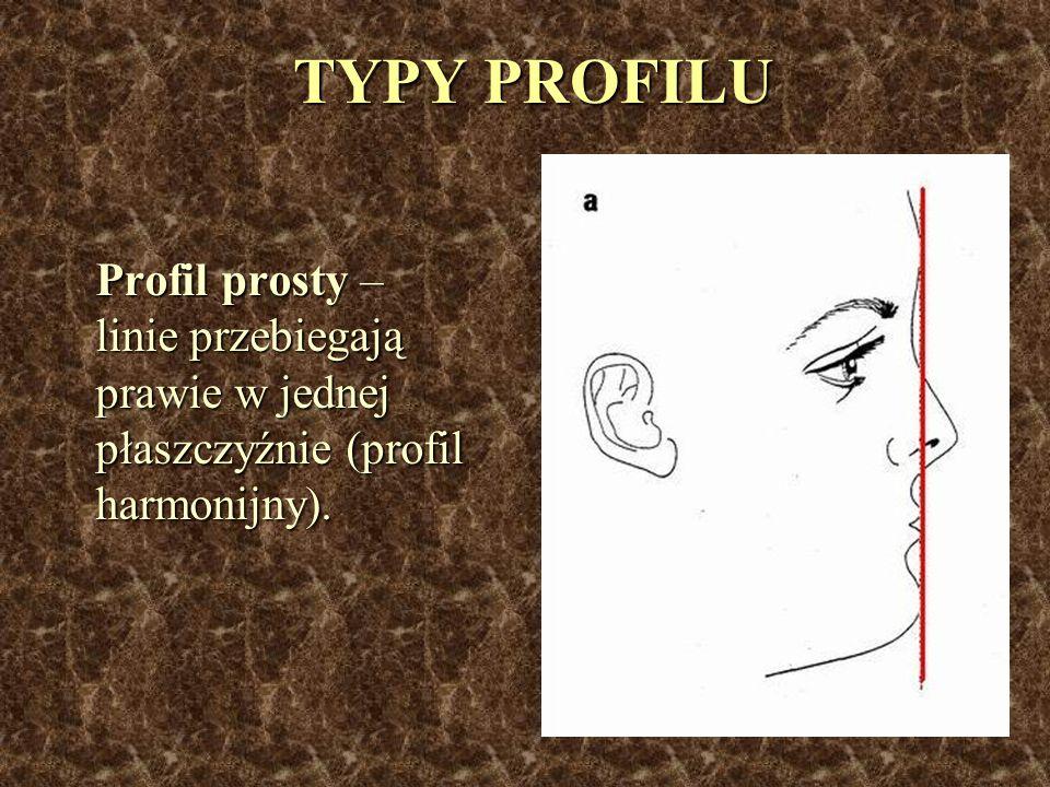 TYPY PROFILU Profil prosty – linie przebiegają prawie w jednej płaszczyźnie (profil harmonijny). Profil prosty – linie przebiegają prawie w jednej pła