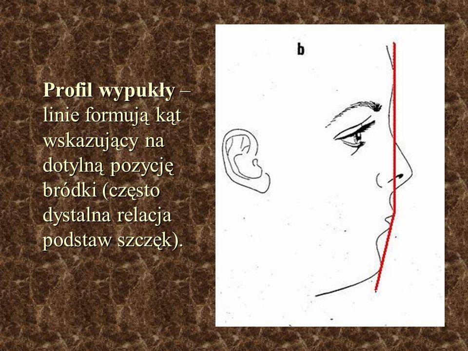 Profil wypukły – linie formują kąt wskazujący na dotylną pozycję bródki (często dystalna relacja podstaw szczęk).