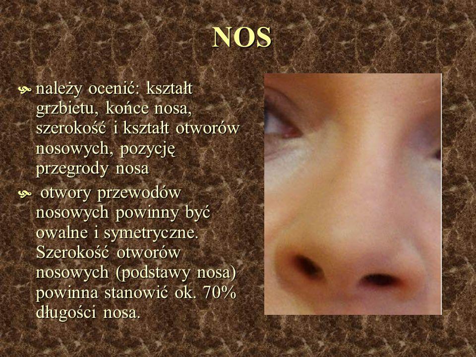 NOS należy ocenić: kształt grzbietu, końce nosa, szerokość i kształt otworów nosowych, pozycję przegrody nosa należy ocenić: kształt grzbietu, końce n