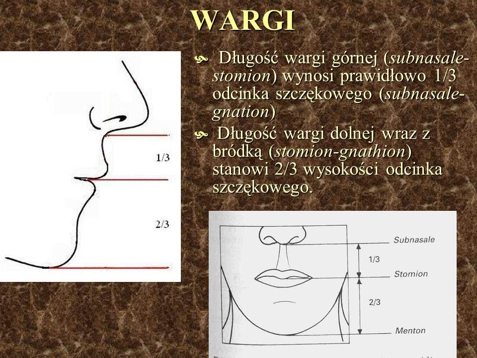 WARGI Długość wargi górnej (subnasale- stomion) wynosi prawidłowo 1/3 odcinka szczękowego (subnasale- gnation) Długość wargi górnej (subnasale- stomio