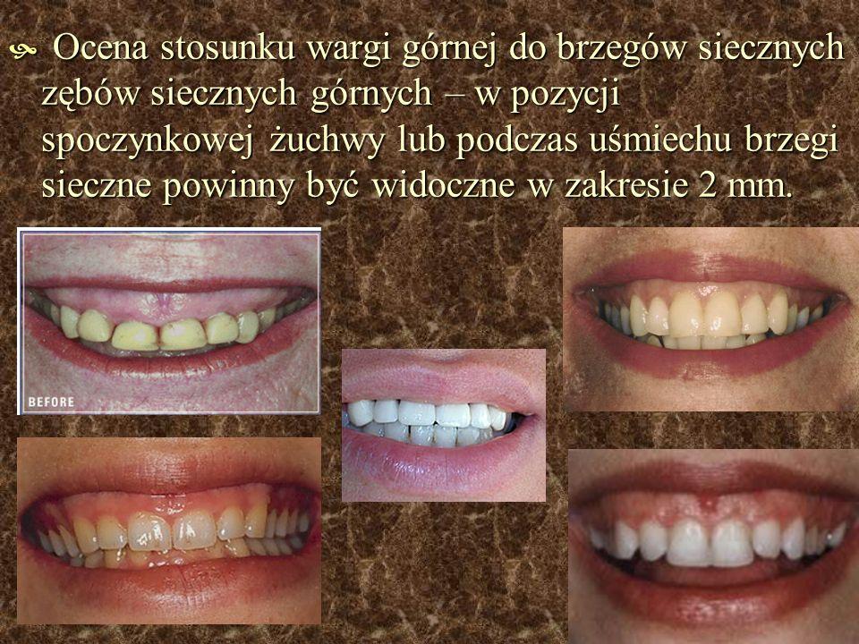 Ocena stosunku wargi górnej do brzegów siecznych zębów siecznych górnych – w pozycji spoczynkowej żuchwy lub podczas uśmiechu brzegi sieczne powinny b
