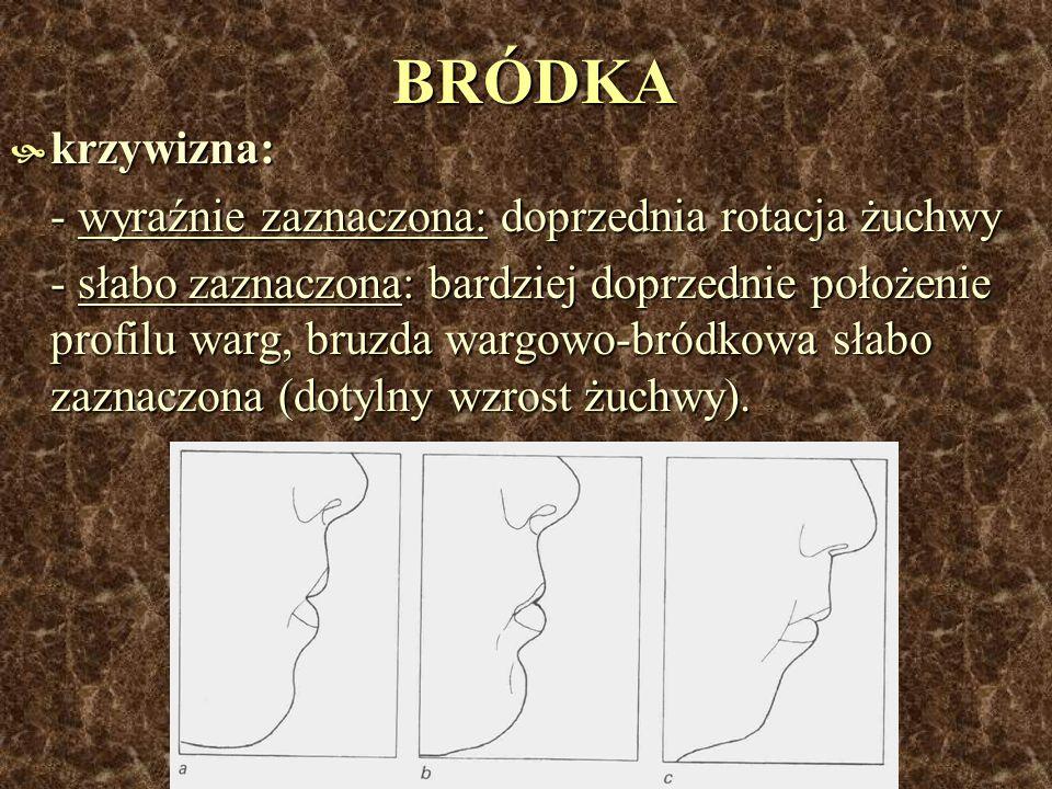 BRÓDKA krzywizna: krzywizna: - wyraźnie zaznaczona: doprzednia rotacja żuchwy - słabo zaznaczona: bardziej doprzednie położenie profilu warg, bruzda w