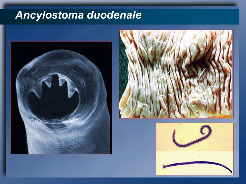 Ancylostoma duodenale