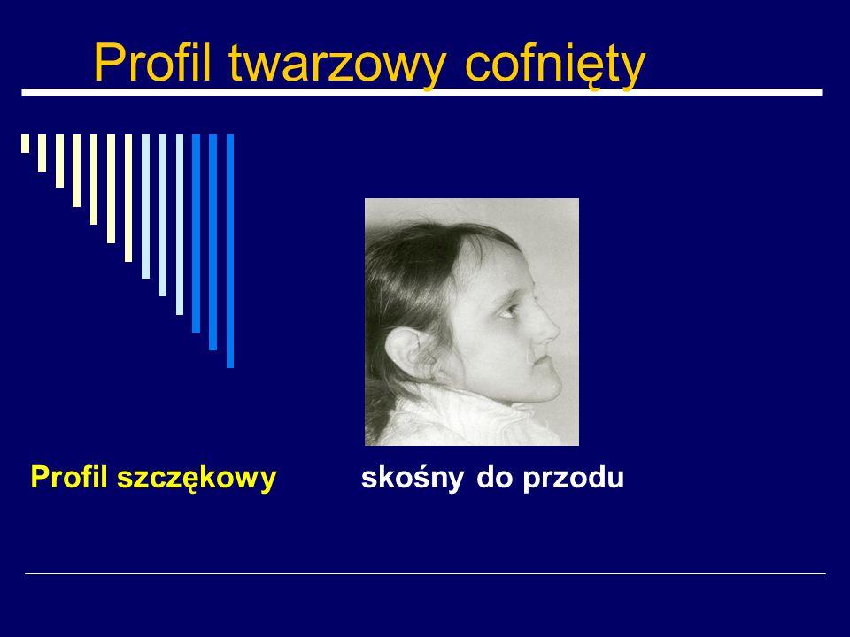 Profil twarzowy cofnięty Profil szczękowy skośny do przodu