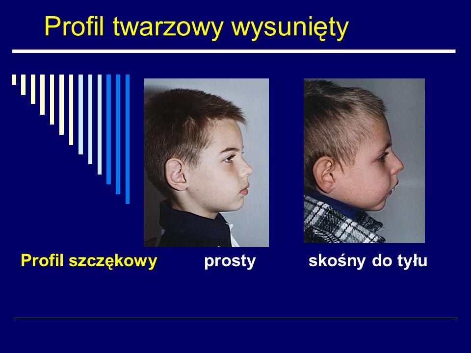 Profil twarzowy wysunięty Profil szczękowy prosty skośny do tyłu