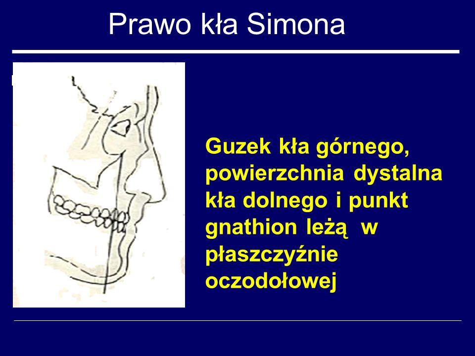 Prawo kła Simona Guzek kła górnego, powierzchnia dystalna kła dolnego i punkt gnathion leżą w płaszczyźnie oczodołowej