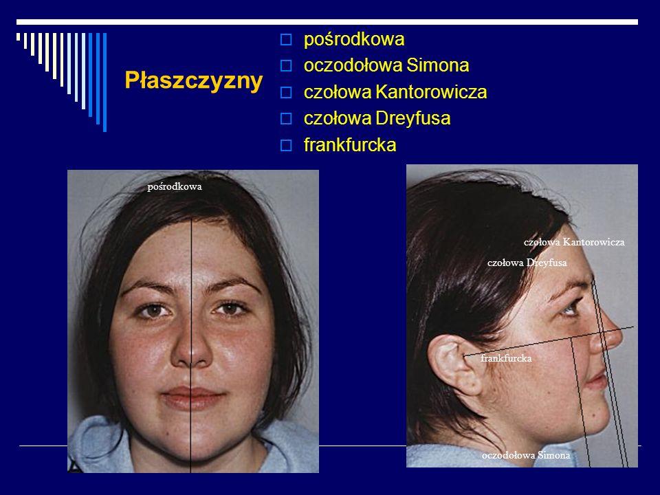 Wskaźnik Izarda szerokość szczęki x 100 Zy-Zy - 10 Szerokość szczęki stanowi połowę szerokości twarzy kostnej mniejszy niż 48 - szczęka zbyt wąska w stosunku do twarzy większy niż 52 - szczęka zbyt szeroka w stosunku do twarzy = 50 ± 2