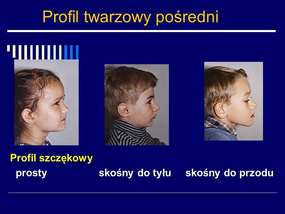 Profil twarzowy pośredni Profil szczękowy prosty skośny do tyłu skośny do przodu