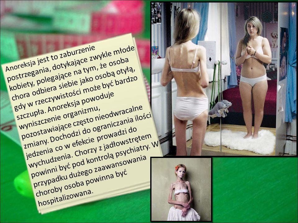 Anoreksja jest to zaburzenie postrzegania, dotykające zwykle młode kobiety, polegające na tym, że osoba chora odbiera siebie jako osobą otyłą, gdy w r