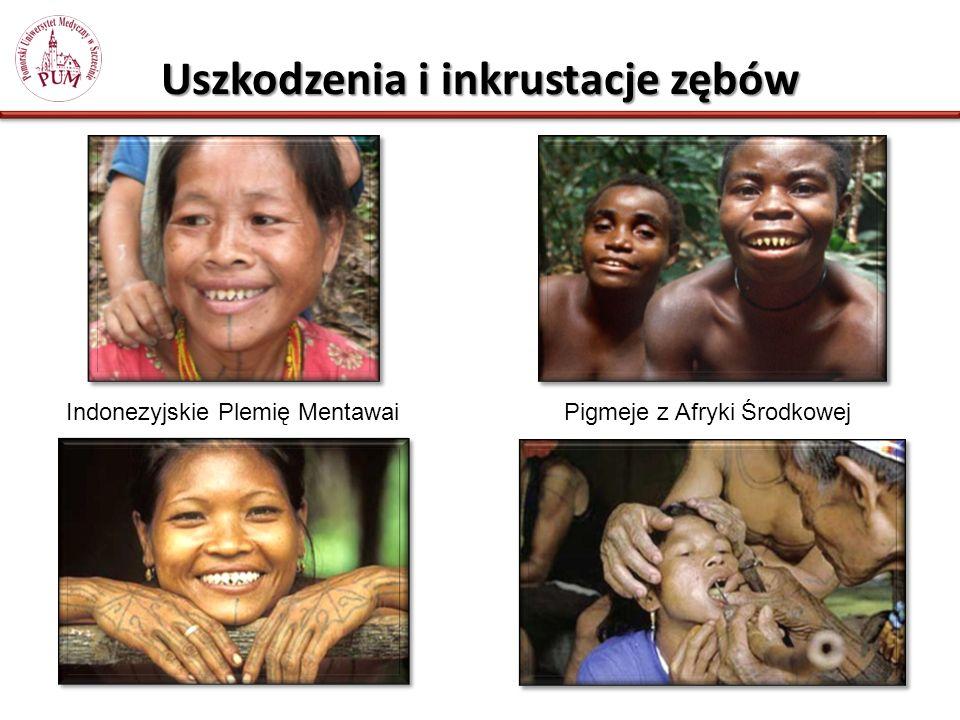 Uszkodzenia i inkrustacje zębów Indonezyjskie Plemię MentawaiPigmeje z Afryki Środkowej