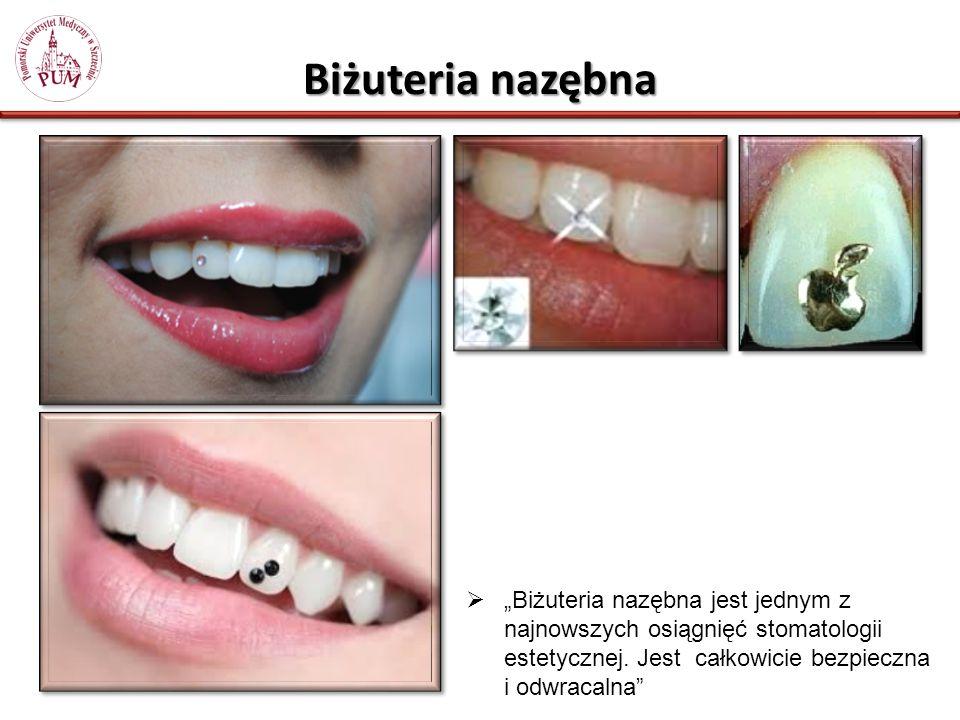 Biżuteria nazębna Biżuteria nazębna jest jednym z najnowszych osiągnięć stomatologii estetycznej.