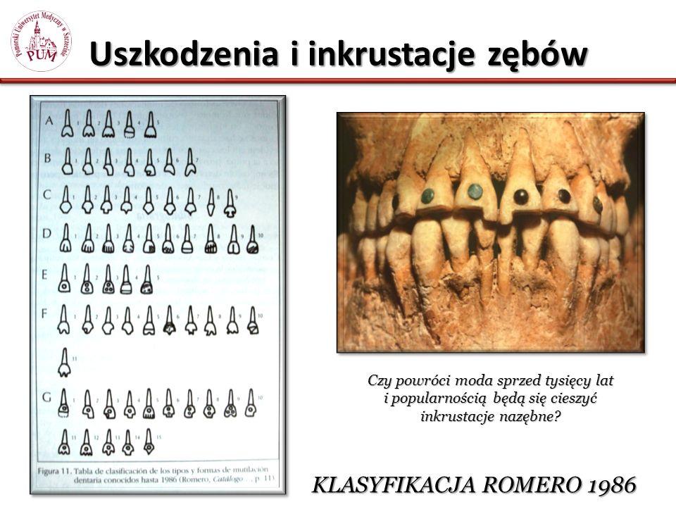 Uszkodzenia i inkrustacje zębów KLASYFIKACJA ROMERO 1986 Czy powróci moda sprzed tysięcy lat i popularnością będą się cieszyć inkrustacje nazębne?