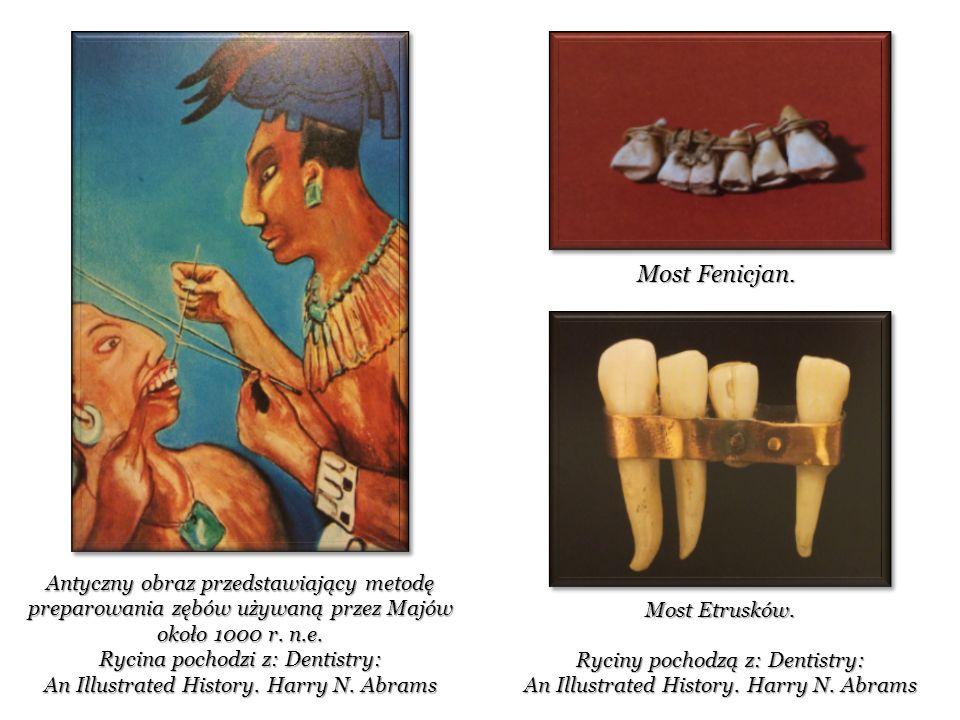 Ryciny pochodzą z: Dentistry: An Illustrated History.