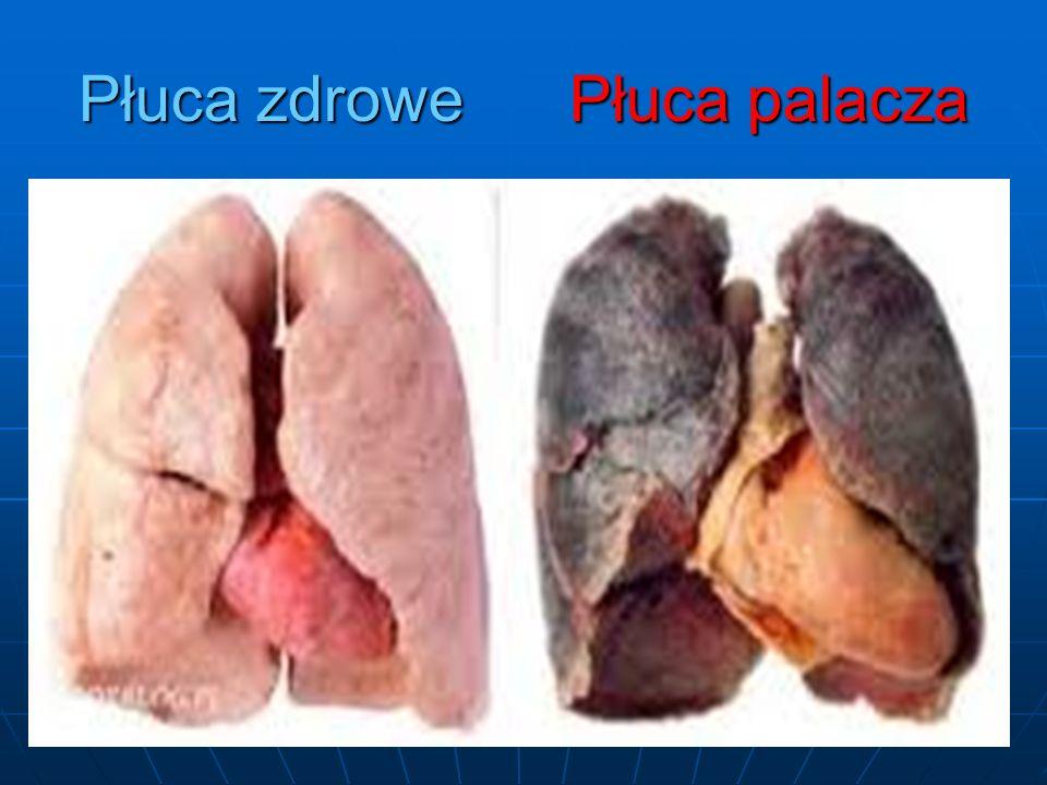 Bardzo ważne, żeby nie palić w ciąży Paląc dostarczasz dziecku 25% mniej tlenu Paląc dostarczasz dziecku 25% mniej tlenu Ryzyko śmierci u niemowląt, których matki paliły jest o 20% większe Ryzyko śmierci u niemowląt, których matki paliły jest o 20% większe Płód wolniej się rozwija i rodzi się z mniejszą masą Płód wolniej się rozwija i rodzi się z mniejszą masą Dzieci, które miały kontakt od uroczenia z dymem papierosowym częściej wpadają w nałóg Dzieci, które miały kontakt od uroczenia z dymem papierosowym częściej wpadają w nałóg