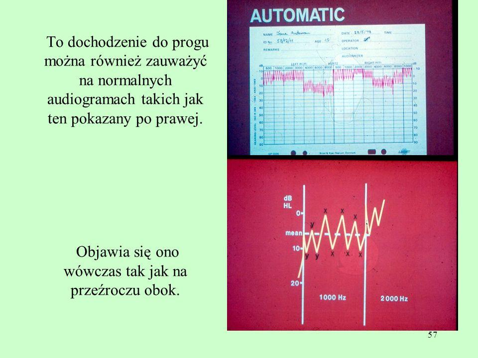 57 To dochodzenie do progu można również zauważyć na normalnych audiogramach takich jak ten pokazany po prawej. Objawia się ono wówczas tak jak na prz