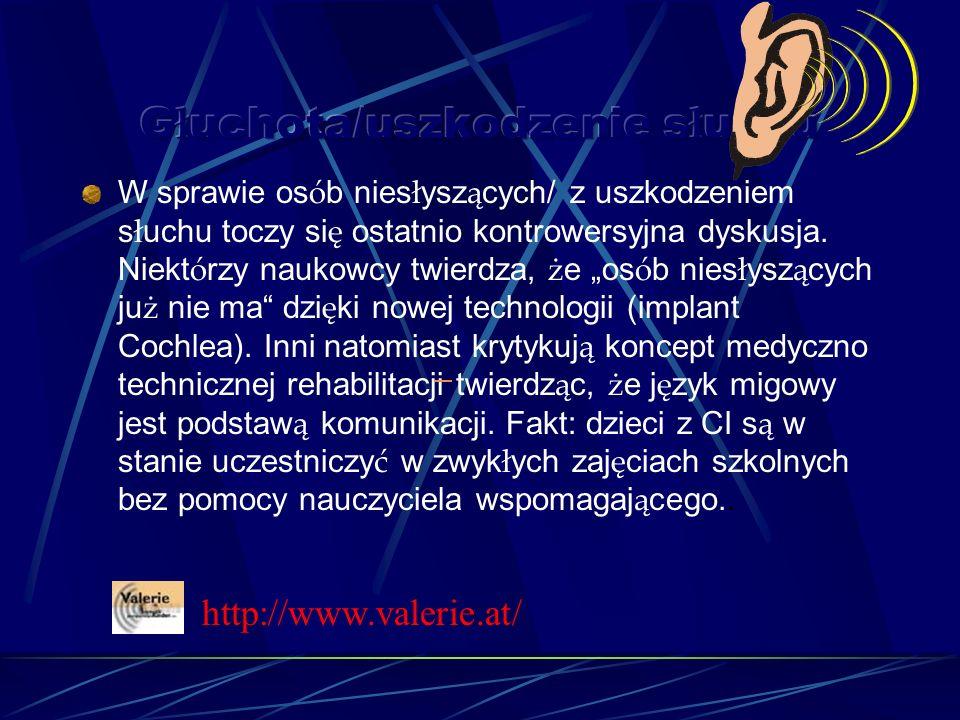W sprawie os ó b nies ł ysz ą cych/ z uszkodzeniem s ł uchu toczy si ę ostatnio kontrowersyjna dyskusja.