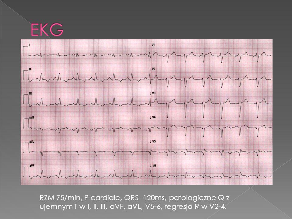 RZM 75/min, P cardiale, QRS -120ms, patologiczne Q z ujemnym T w I, II, III, aVF, aVL, V5-6, regresja R w V2-4.