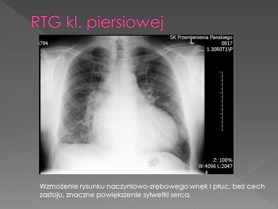 Wzmożenie rysunku naczyniowo-zrębowego wnęk i płuc, bez cech zastoju, znaczne powiększenie sylwetki serca.