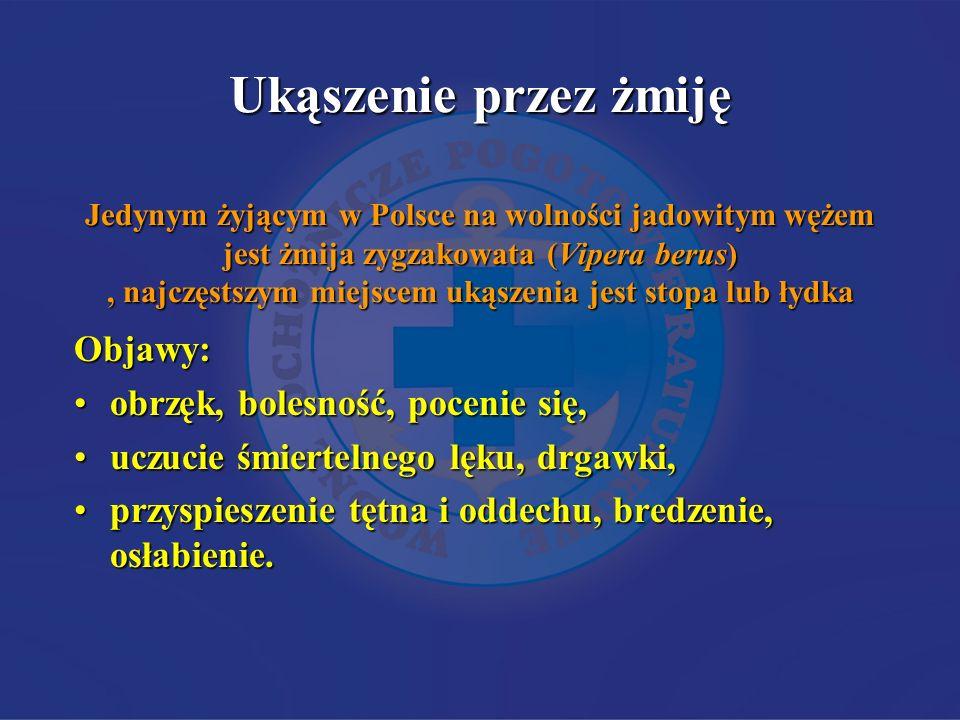 Ukąszenie przez żmiję Jedynym żyjącym w Polsce na wolności jadowitym wężem jest żmija zygzakowata (Vipera berus), najczęstszym miejscem ukąszenia jest