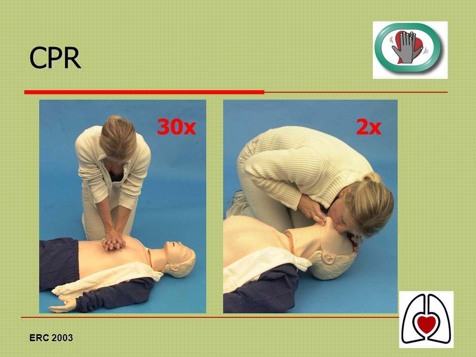 ERC 2003 CPR 2x30x