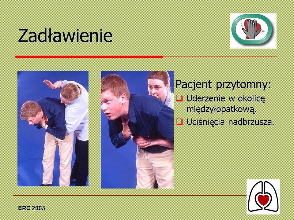 ERC 2003 Zadławienie Pacjent przytomny: Uderzenie w okolicę międzyłopatkową. Uderzenie w okolicę międzyłopatkową. Uciśnięcia nadbrzusza. Uciśnięcia na