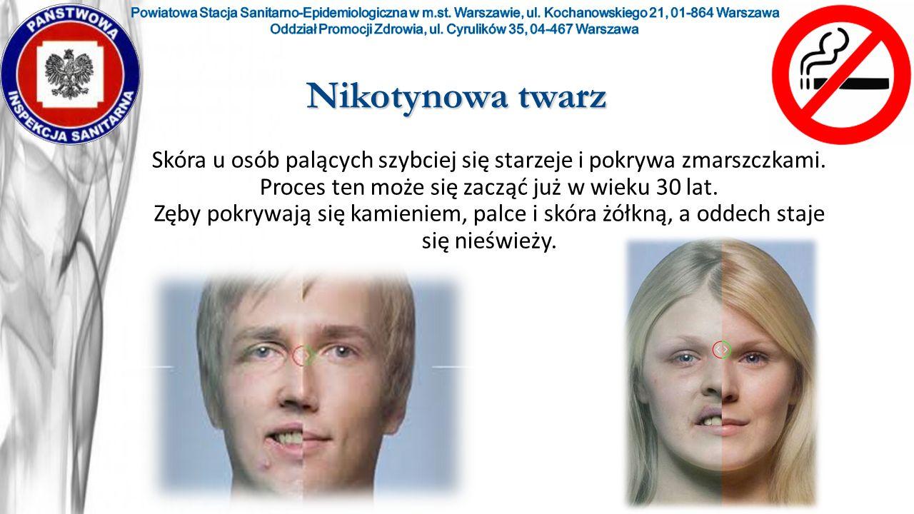 Nikotynowa twarz Skóra u osób palących szybciej się starzeje i pokrywa zmarszczkami. Proces ten może się zacząć już w wieku 30 lat. Zęby pokrywają się