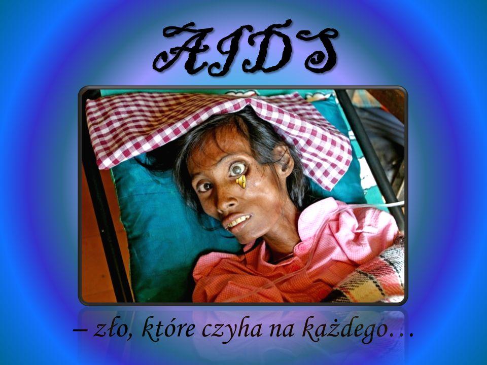 SPIS TREŚCI Co to jest AIDS.CO to jest HIV. Historia choroby Jak dochodzi do zakażenia.