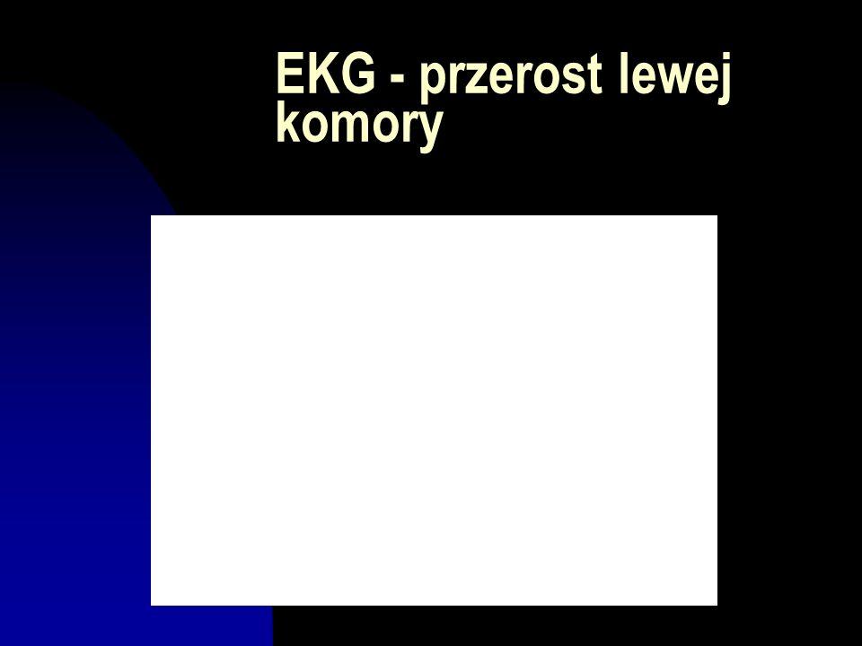 EKG - przerost lewej komory