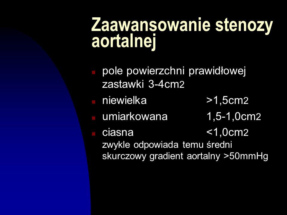 Zaawansowanie stenozy aortalnej n pole powierzchni prawidłowej zastawki 3-4cm 2 n niewielka>1,5cm 2 n umiarkowana1,5-1,0cm 2 n ciasna 50mmHg