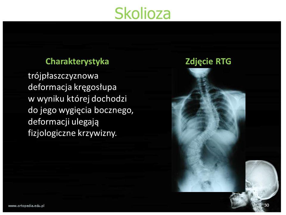 Skolioza Charakterystyka trójpłaszczyznowa deformacja kręgosłupa w wyniku której dochodzi do jego wygięcia bocznego, deformacji ulegają fizjologiczne krzywizny.