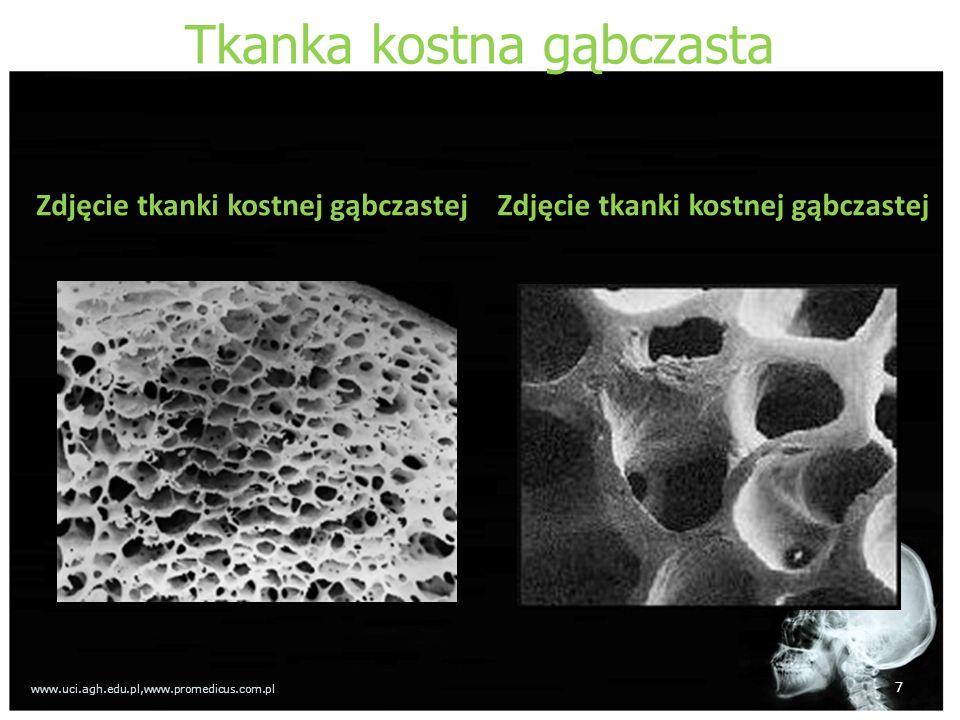 Tkanka kostna gąbczasta Zdjęcie tkanki kostnej gąbczastej 7 www.uci.agh.edu.pl,www.promedicus.com.pl