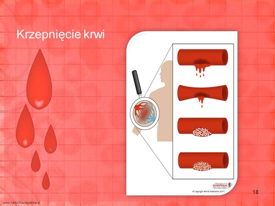 Krzepnięcie krwi 18 www.hemofilia.republika.pl