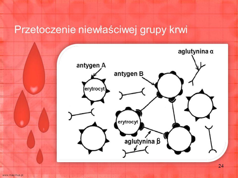 Przetoczenie niewłaściwej grupy krwi 24 www.maximus.pl