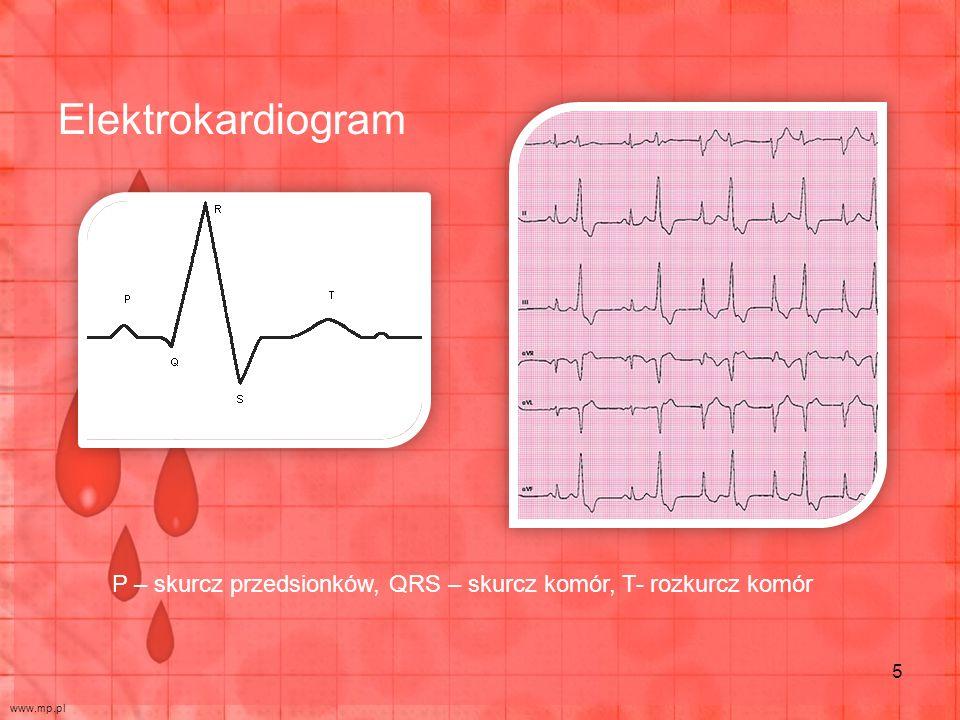 P – skurcz przedsionków, QRS – skurcz komór, T- rozkurcz komór Elektrokardiogram www.mp.pl 5
