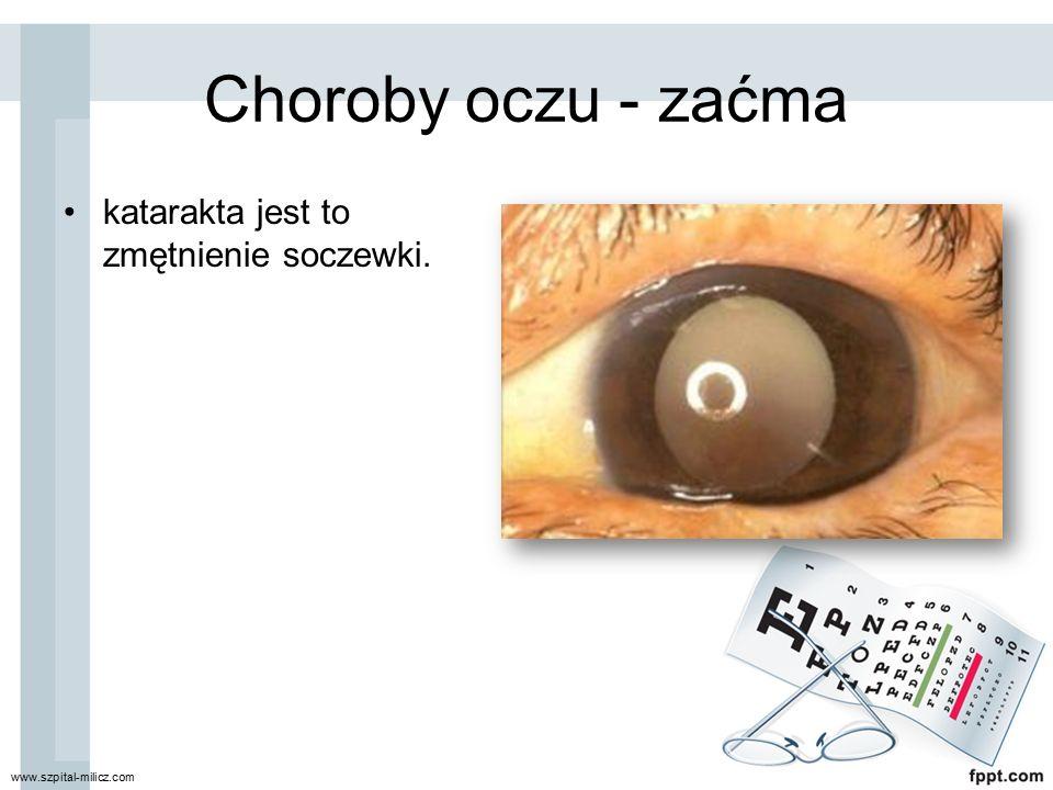 Choroby oczu - zaćma katarakta jest to zmętnienie soczewki. www.szpital-milicz.com