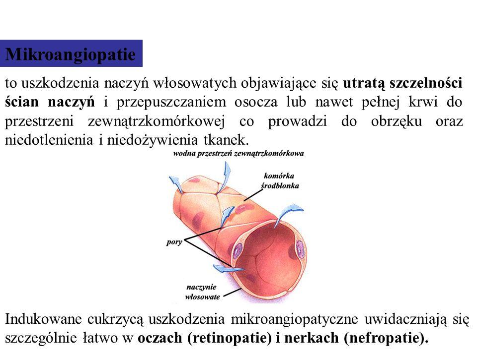 Mikroangiopatie ujawniają się stosunkowo późno i są skutkiem zmian w naczyniach włosowatych, związanych głównie z glikacją białek.