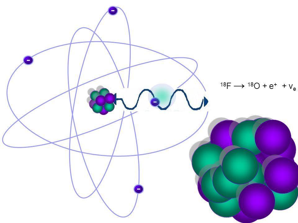 RADIOACTIVE SUGER Fluoro–deoxy-glucose (F-18 FDG)