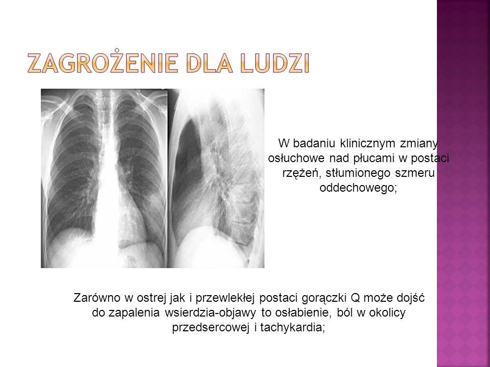 W badaniu klinicznym zmiany osłuchowe nad płucami w postaci rzężeń, stłumionego szmeru oddechowego; Zarówno w ostrej jak i przewlekłej postaci gorączki Q może dojść do zapalenia wsierdzia-objawy to osłabienie, ból w okolicy przedsercowej i tachykardia;