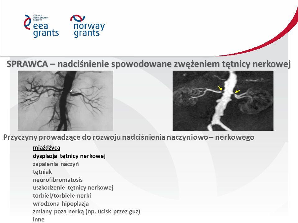 SPRAWCA – nadciśnienie spowodowane zwężeniem tętnicy nerkowej Przyczyny prowadzące do rozwoju nadciśnienia naczyniowo – nerkowego miażdżyca dysplazja tętnicy nerkowej zapalenia naczyń tętniak neurofibromatosis uszkodzenie tętnicy nerkowej torbiel/torbiele nerki wrodzona hipoplazja zmiany poza nerką (np.