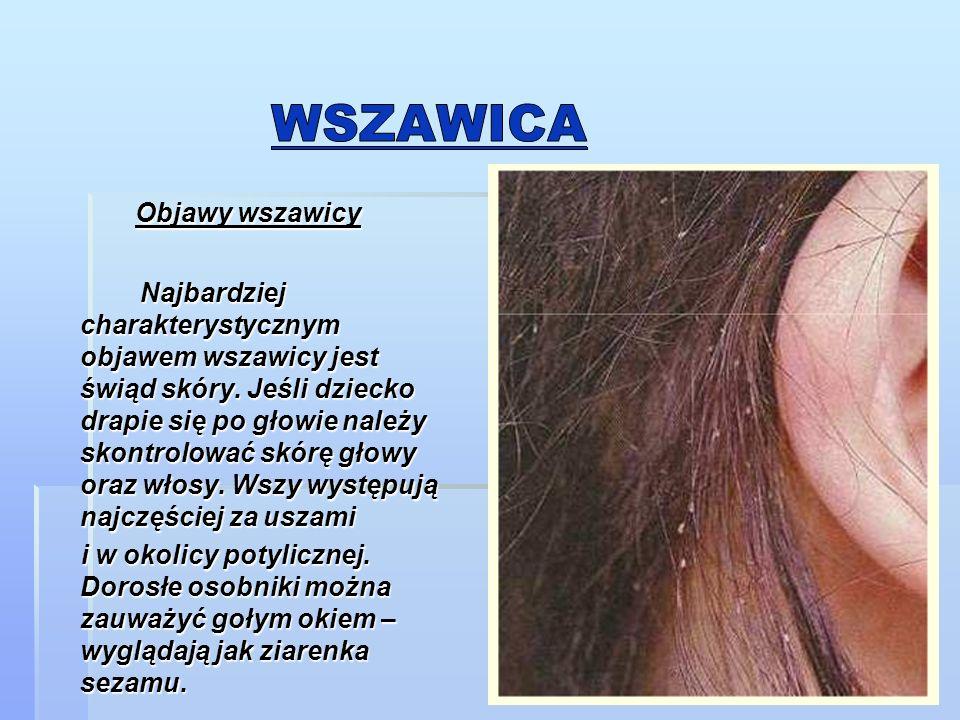 Objawy wszawicy Objawy wszawicy Najbardziej charakterystycznym objawem wszawicy jest świąd skóry.