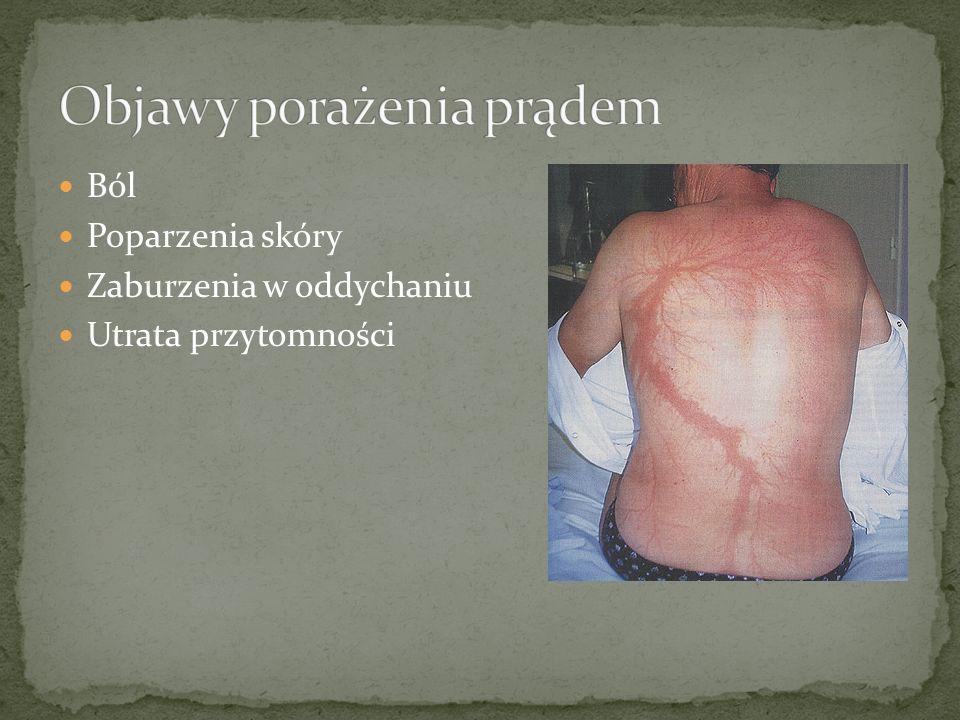 Ból Poparzenia skóry Zaburzenia w oddychaniu Utrata przytomności
